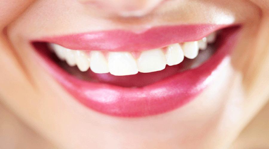 Avoir des dents blanches : c'est possible !