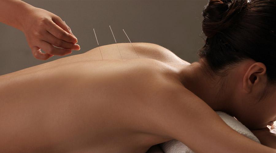 Psychologie Avant La Grossesse - L'acupuncture pour tomber enceinte