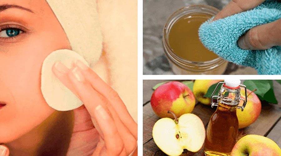 Le vinaigre de pomme élimine les taches, la peau grasse, les boutons et éclaircit les cheveux : voici 4 façons de l'utiliser